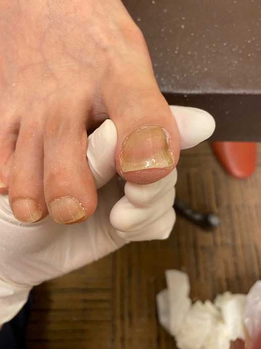 画像:巻き爪の施術の流れ